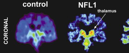 Normal brain vs brain with concussion issues.  Photo from pbs.org